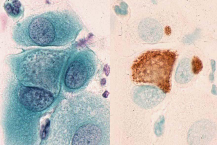 クラミジア性子宮頚管炎